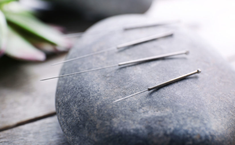 how acupuncture helps you