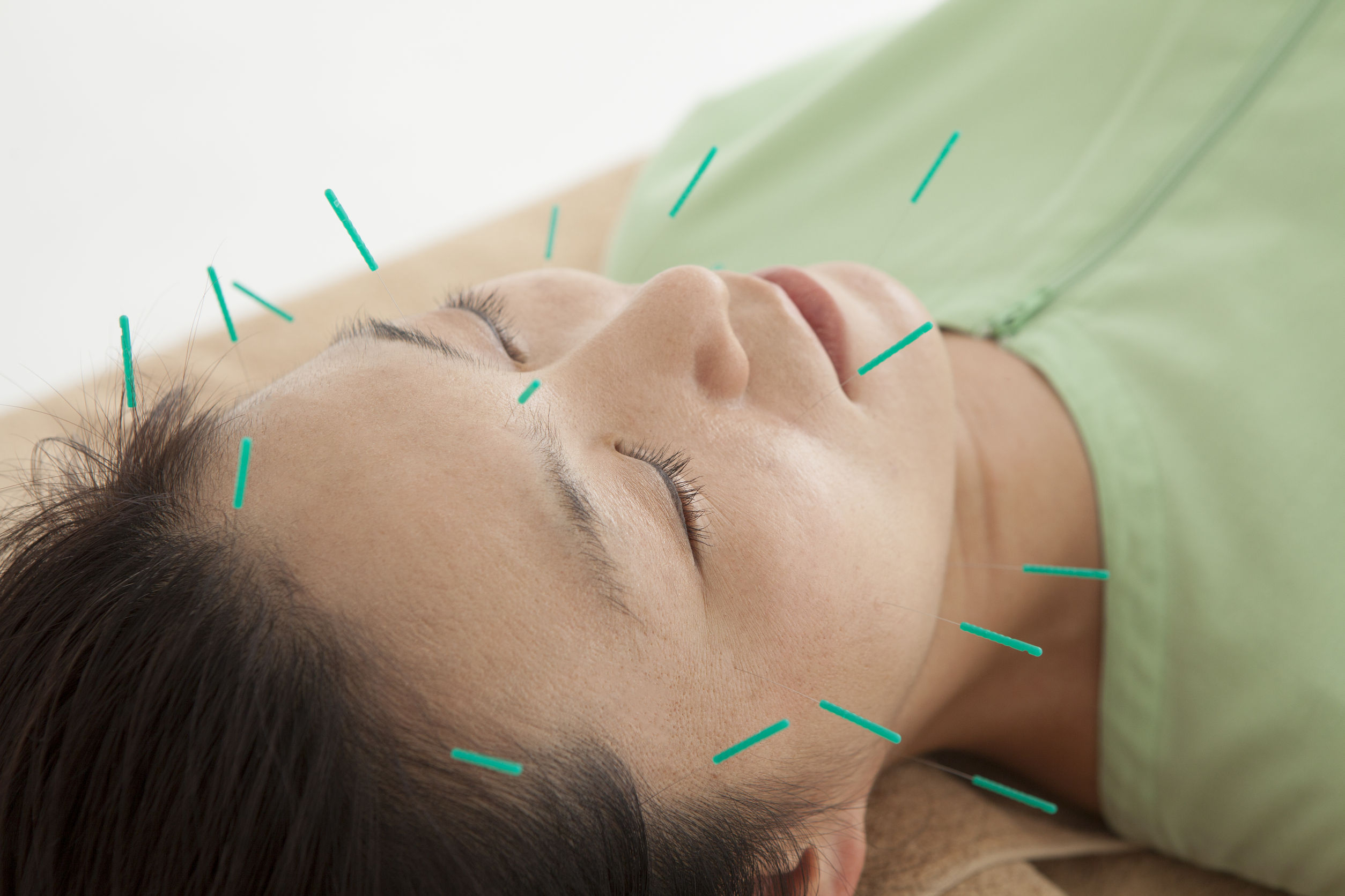 How To Get The Most Out Of Acupuncture For Your Anxiety